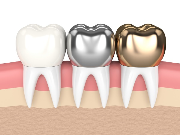 A Cosmetic Dentist Discusses Dental Crown Options